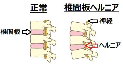椎間板ヘルニア(腰痛)