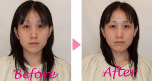 美容鍼 befor & after -4