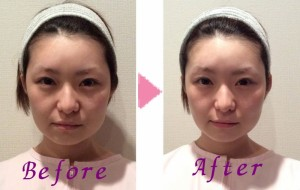 美容鍼 befor & after -2