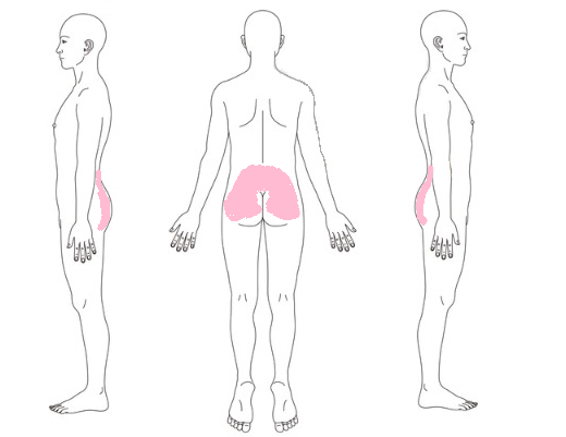 腰痛-症例